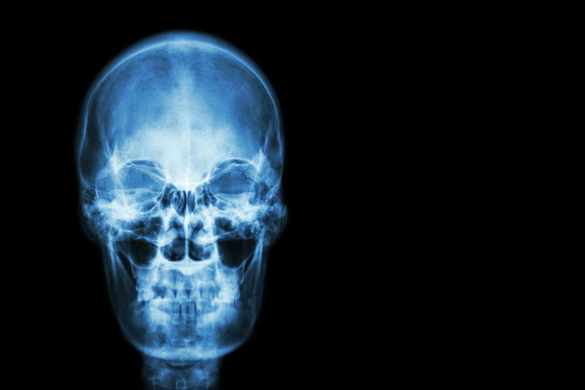 The successful isolation of stem cells for skull and face bones could lead to new treatments for dangerous conditions