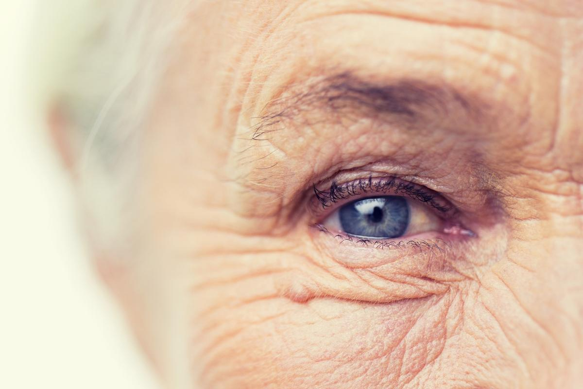 Age-related macular degeneration, diabetic retinopathy and glaucoma were all associated with a higher risk of developing Alzheimer's disease in a new study
