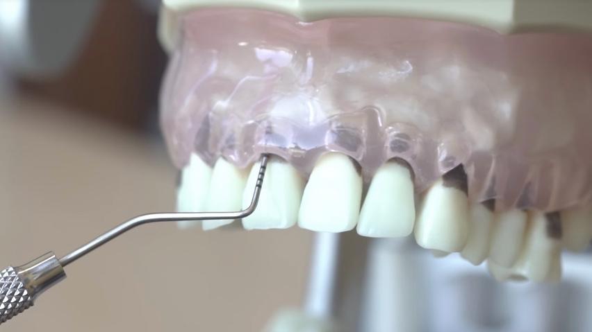 A standard periodontal probe is used on a dental model