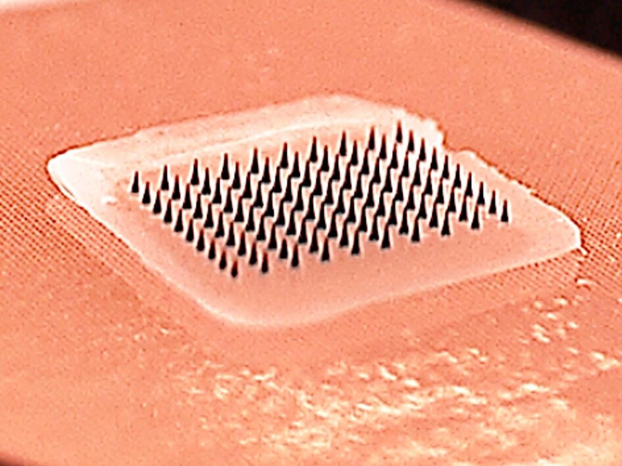 The microneedle patch contains an array of tiny plastic needles that dissolve in the skin, releasing the drug contained inside
