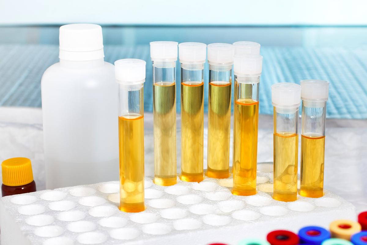 A GHB metabolite shows up in the urine even 20 hours after the drug has been ingested