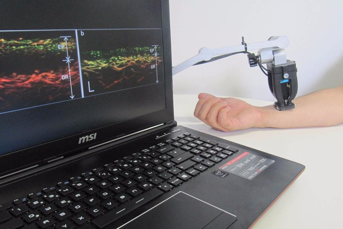 RSOMtech uses lasers to generate ultrasound waves beneath the skin's surface