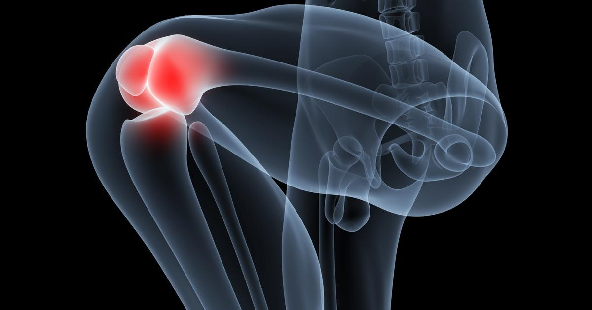 Newly understood protein raises hopes of advanced arthritis treatments