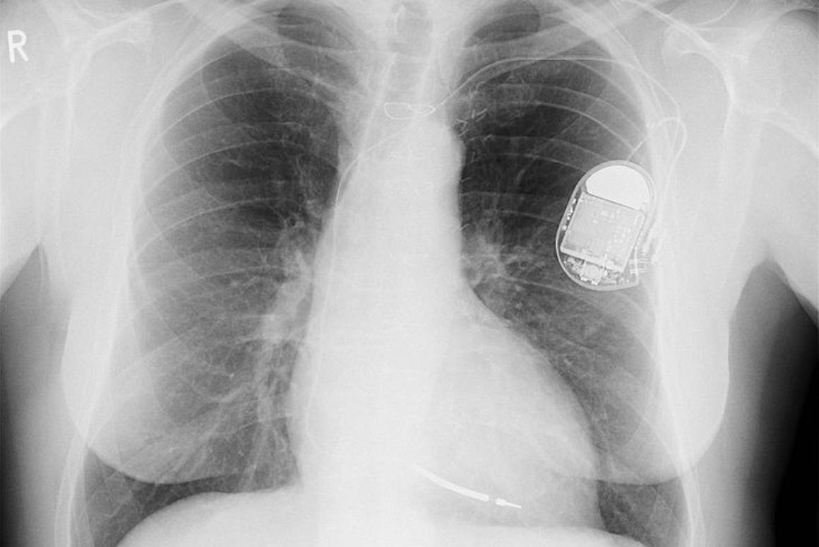 Regular implantable defibrillators (like this one) may save patients' lives, but also inflict a lot of pain and trauma (Photo: Wikimedia Commons)