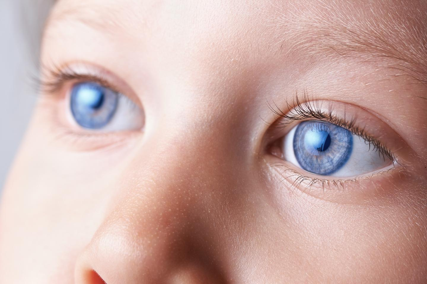 An inability to suppress eye movement could be a reliable indicator of ADHD (Photo: Shutterstock)