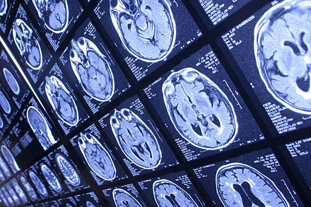 MRI is used to measure deviations in brain circuitry to detect Autism in under 10 minutes with 94 percent success rate