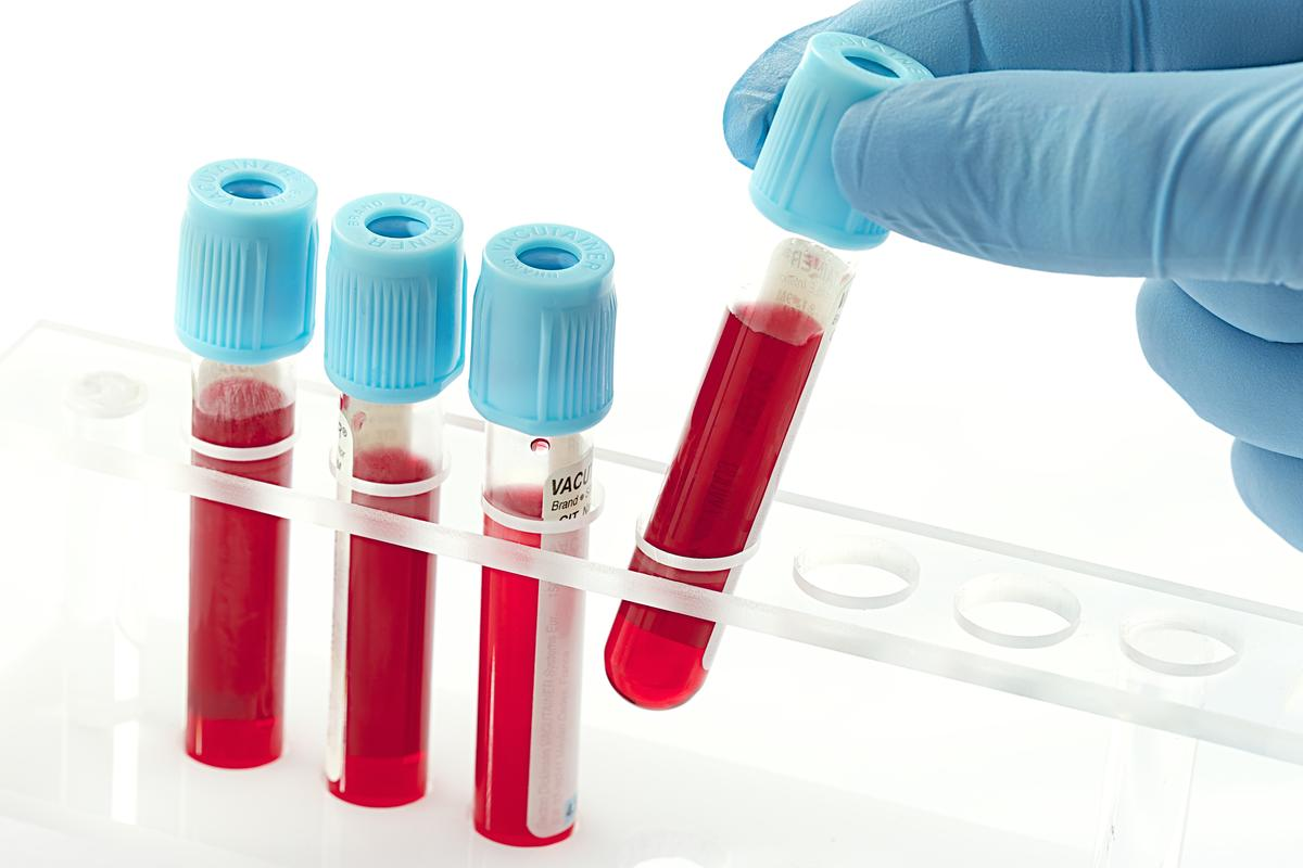 In addition to early detection, it is hoped that the new blood test will lead to significant advancement in avenues of treatment for Alzheimer's (Photo: Shutterstock)