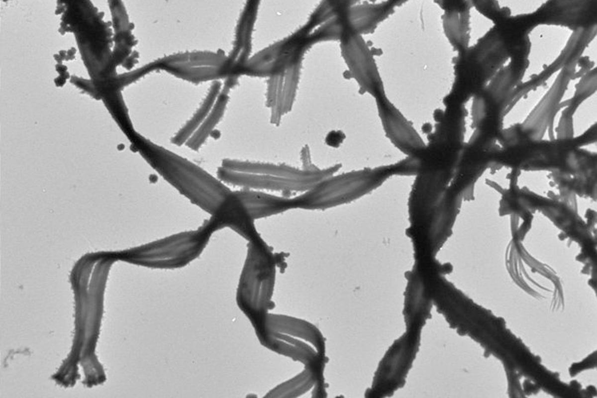 Mariprofundus ferrooxydans PV-1 bacteria (Image: Clara S. Chan)