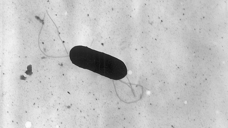 Electron micrograph of a flagellated Listeria monocytogenes bacterium, an infectious agent responsible for the food borne illness Listeriosis
