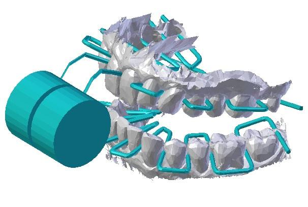 Diagram showing the dental floss moving between the teeth with just one bite