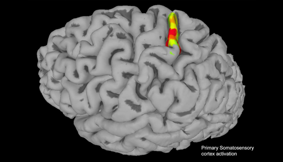 Electrodes were implanted into the somatosensory cortex of the brain (highlighted), inducing sensations of touch in the arm of a paralyzed man