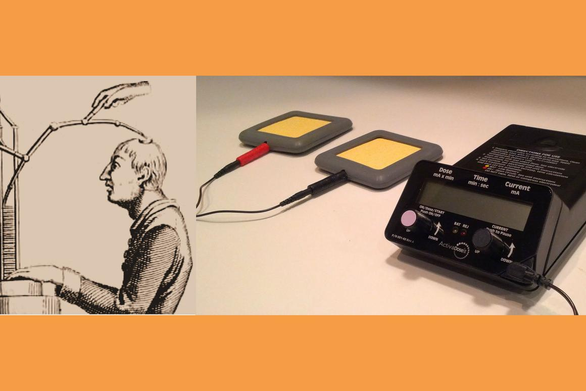 tDCS has come a long way from Giovanni Aldini's 1802 pioneering treatment of Luigi Lanzarini's major depression (left) to a compact modern tDCS apparatus (right) (Photo: johnboy6785)