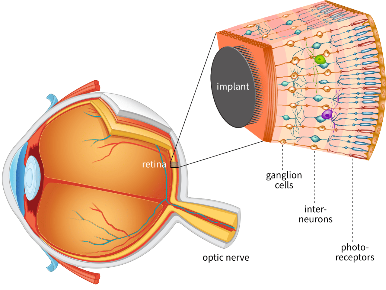 A diagram showing how the artificial retina would work