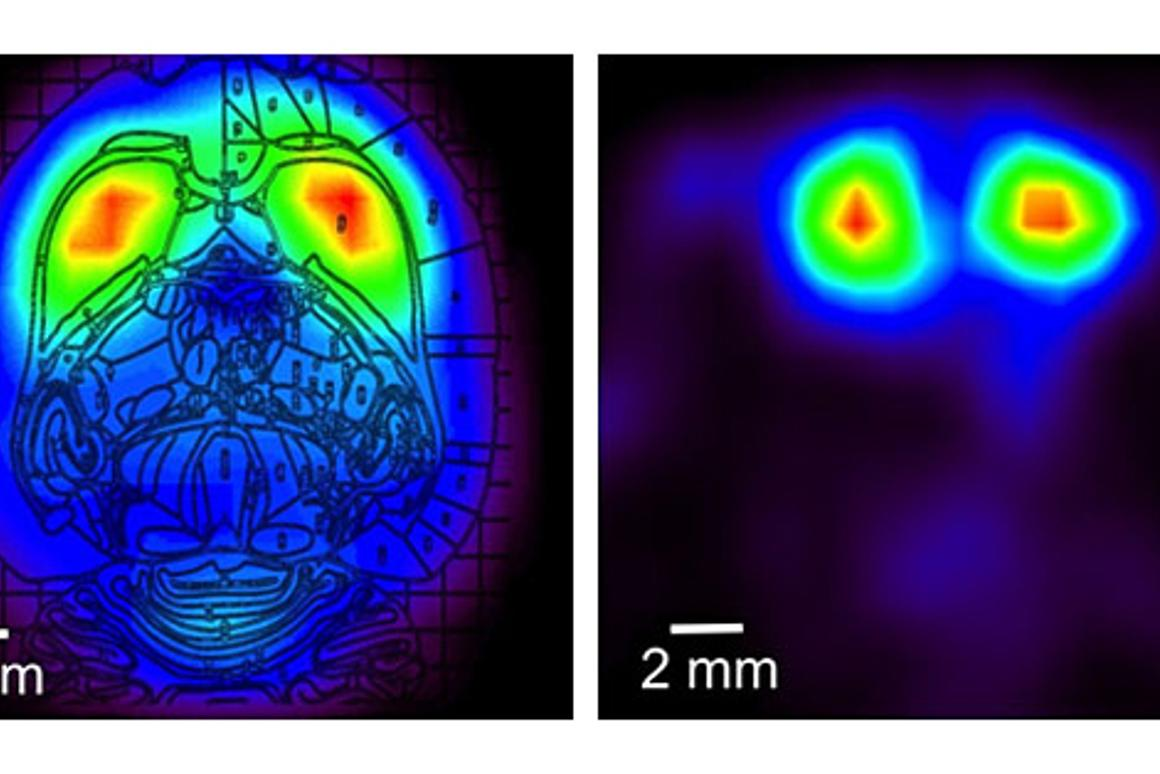 PET scans of a rat's brain made with the RatCAP scanner measuring levels of dopamine, which are concentrated in the striatum, a brain region involved in reward and motivation