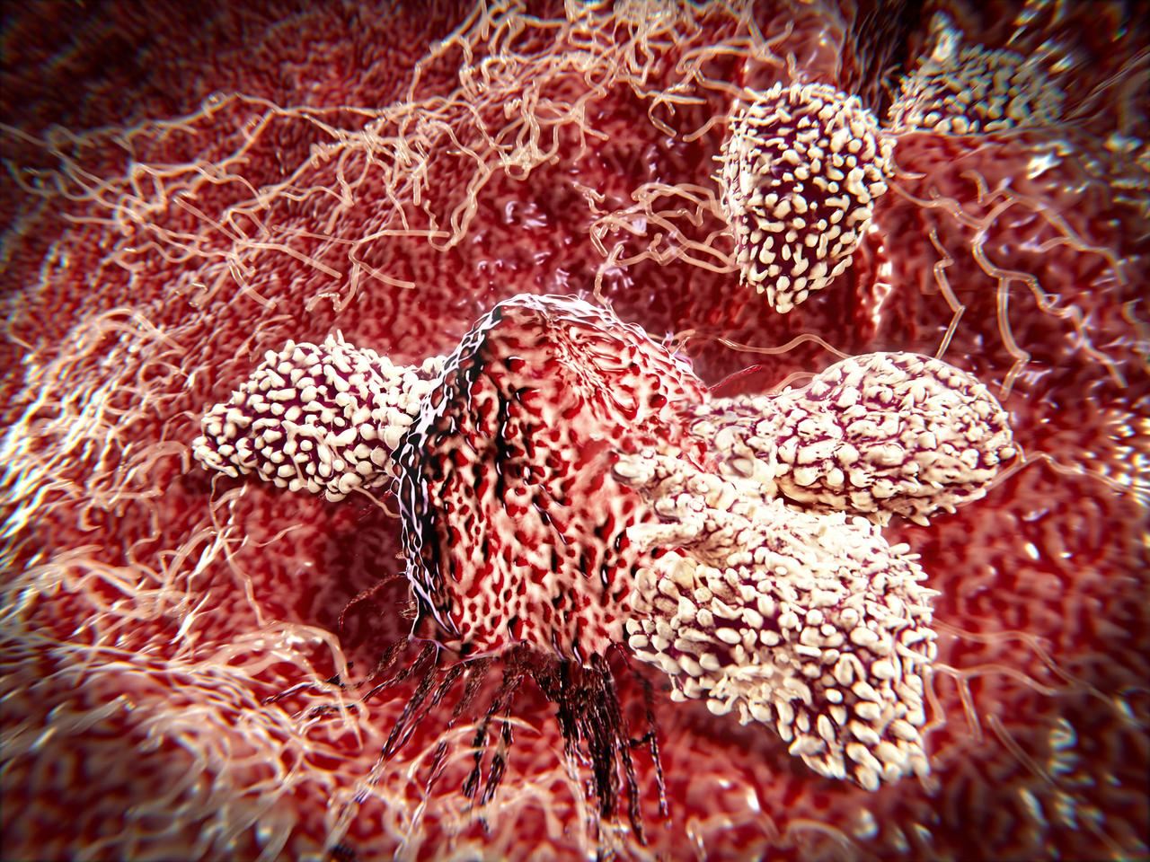 Scientists have found that fatty acids produced by gut bacteria could improve cancer immunotherapy