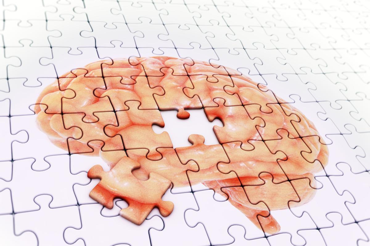 Magnetic resonance (MR) imaging-guided ultrasound has been shown to reverse the symptoms of Alzheimer's in mice (Image: Shutterstock)
