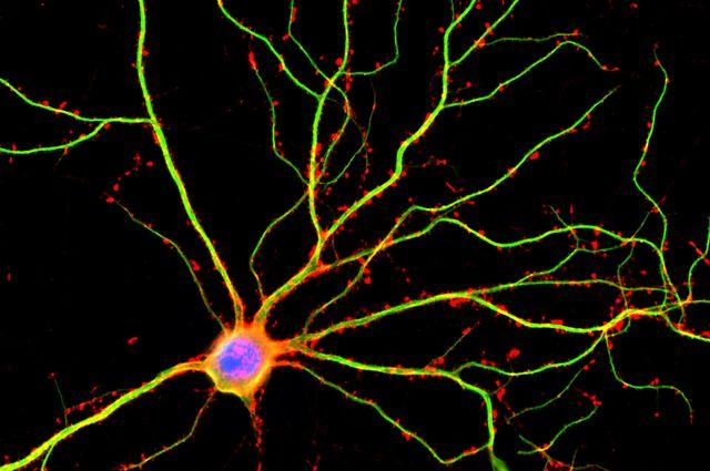 A neuron with the dendrites shown in green