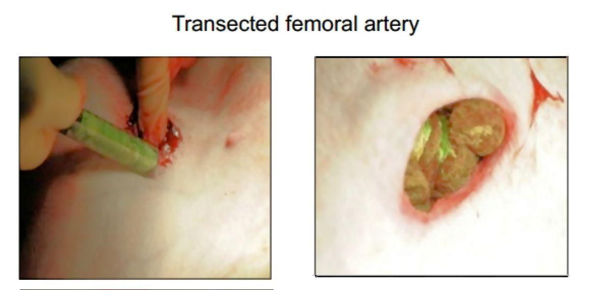 Demonstration of the use of an XStat injector to control bleeding of a deep puncture wound that cut through the femoral artery of a pig (Photo: RevMedx)