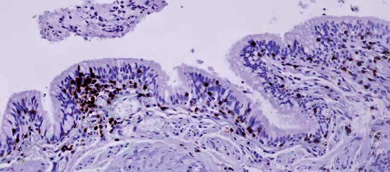 A biopsy ofairway tissue from a patient withChronic Obstructive Pulmonary Disorder, where the airways become inflamed and make it difficult to breathe