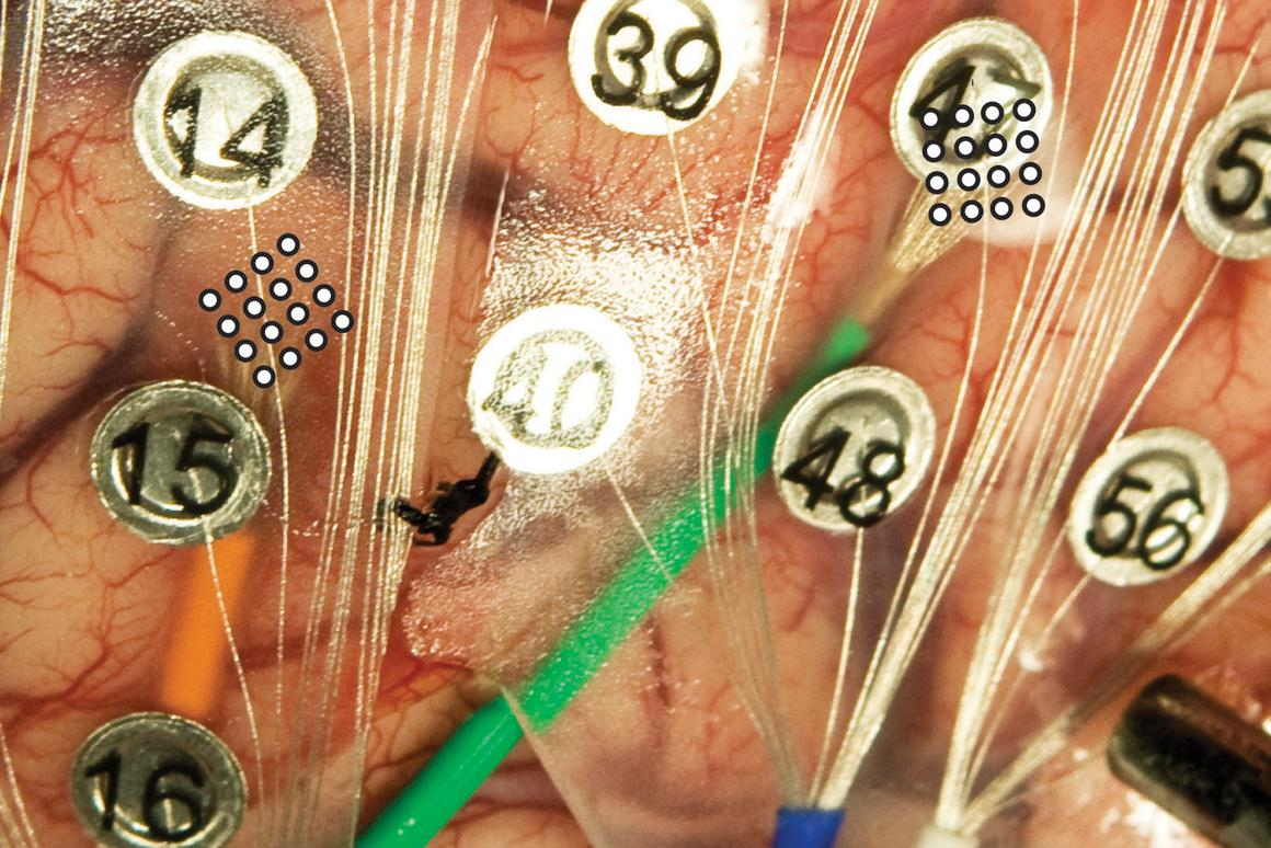Larger, numbered button-like electrodes (ECoGs) alongside the microECoGs indicated by the 4x4 circle grid at the end of the green and orange wires on the brain of a volunteer patient (Image: University of Utah Department of Neurosurgery)