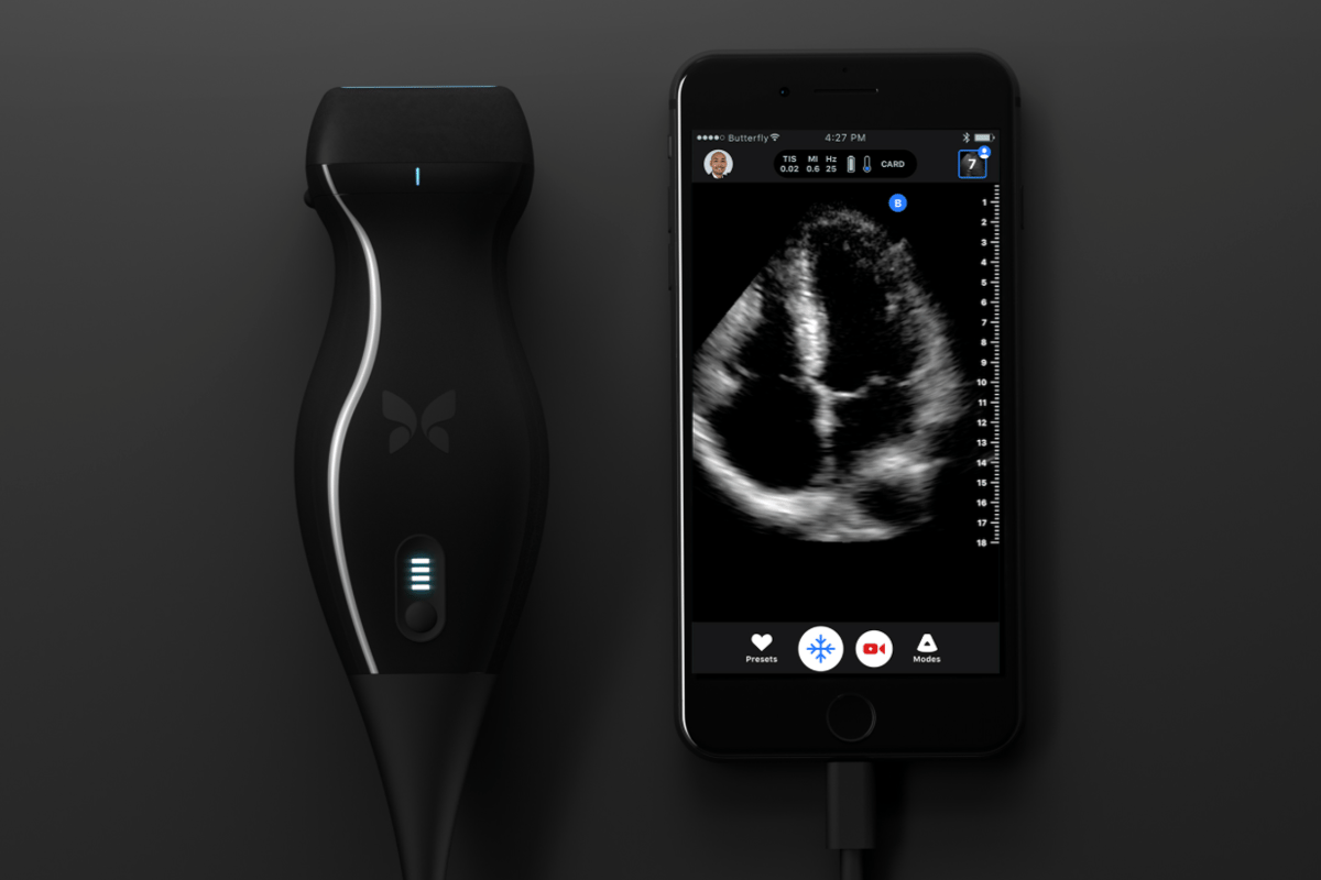 The portable ultrasound device is the size of a electric shaver