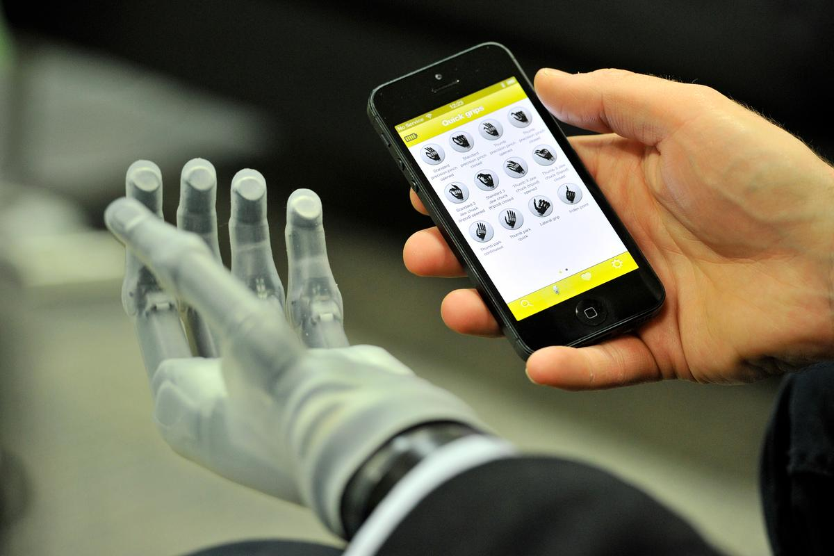 The i-limb is controlled by a smartphone app