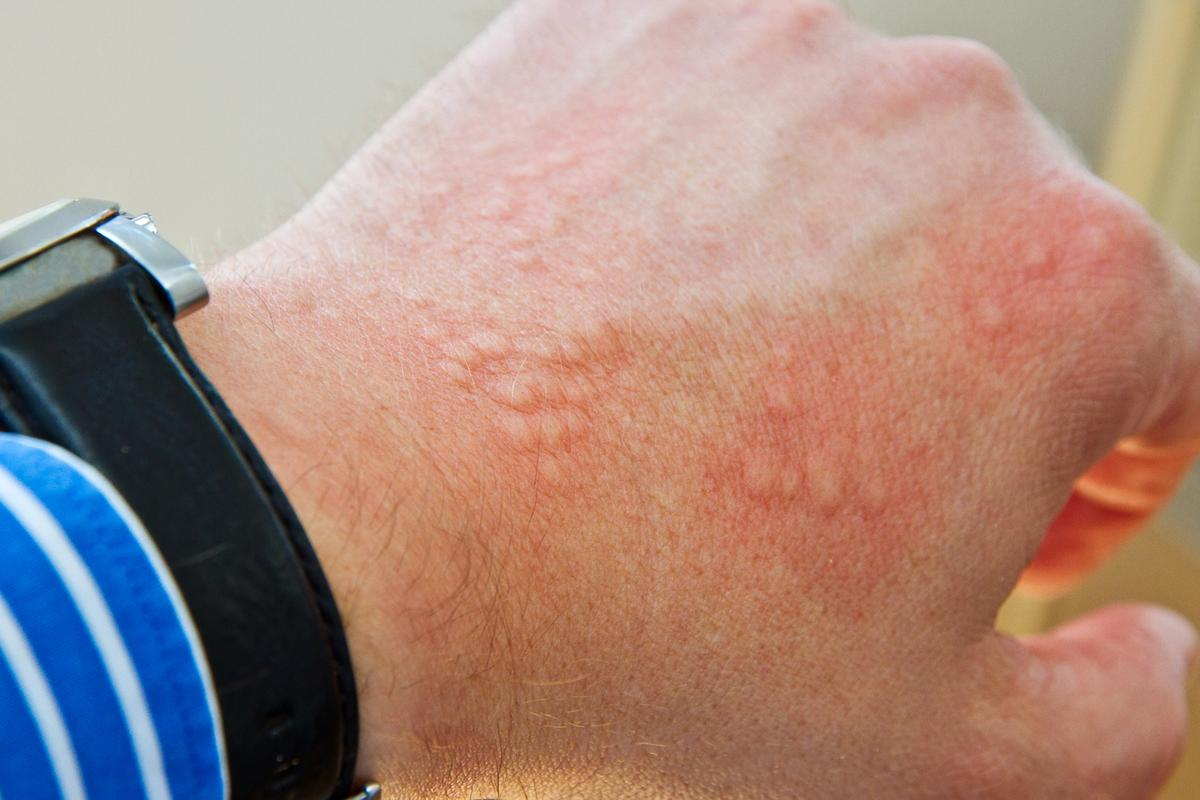 Researchers have found one of the underlying processes of skin-based immunity (Photo: Shutterstock)
