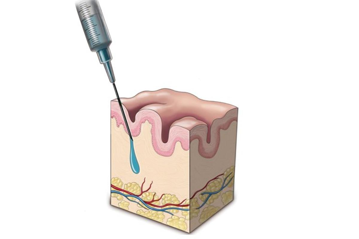 The injectable biomedical material PEG-HA has been developed to permanently replace soft tissue