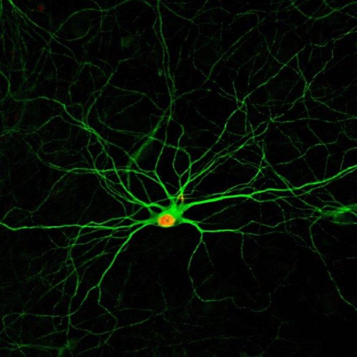 New neurons, four months after being converted from glial cells thanks to a chemical formula developed at Penn State