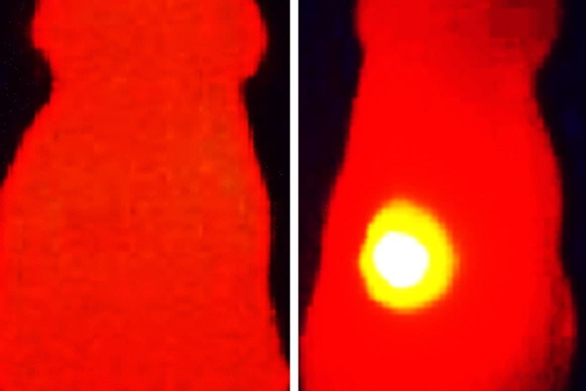 An infrared image of a tumor injectedwith melanin-loaded nanoparticles (right), compared to one that had just nanoparticles with no melanin (left)