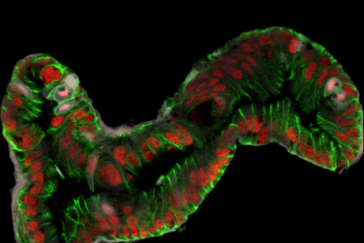 In a world first, scientists from Cincinnati Children's Hospital Medical Center have created functioning fetal intestinal tissue from pluripotent stem cells (Image: Jason Spence)