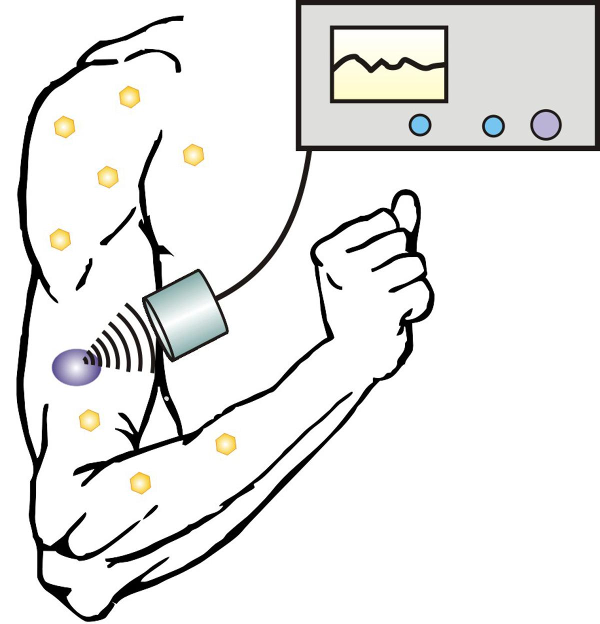 Focused waves of ultrasound have been used to release insulin from reservoirs in the skin
