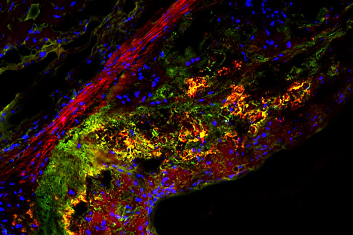 In this cross section of a mouse aorta, the yellow areas show where macrophages are digesting cellular waste