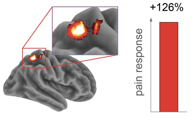 Activity in the brain's somatosensory cortex, which receives pain signals, increased 126 percent following a sleepless night vs. a full night of sleep