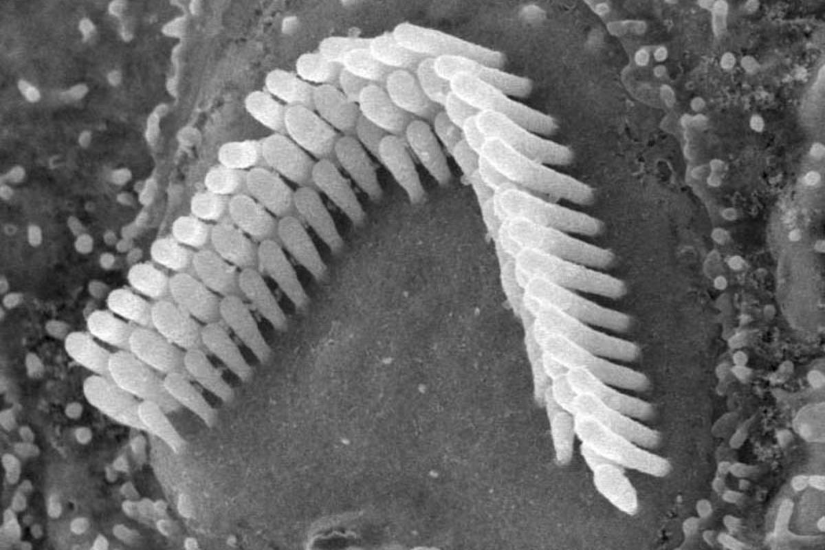 Hair cells like these have been successfully recreated in a petri dish (Photo: CC)