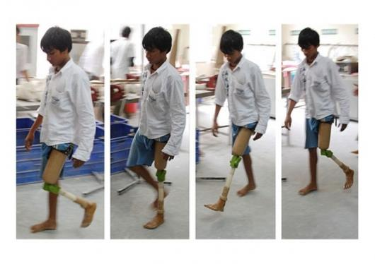 A superior, low-cost prosthetic knee joint, developed by Stanford's JaipurKnee project team, is put through its paces, during prototype testing