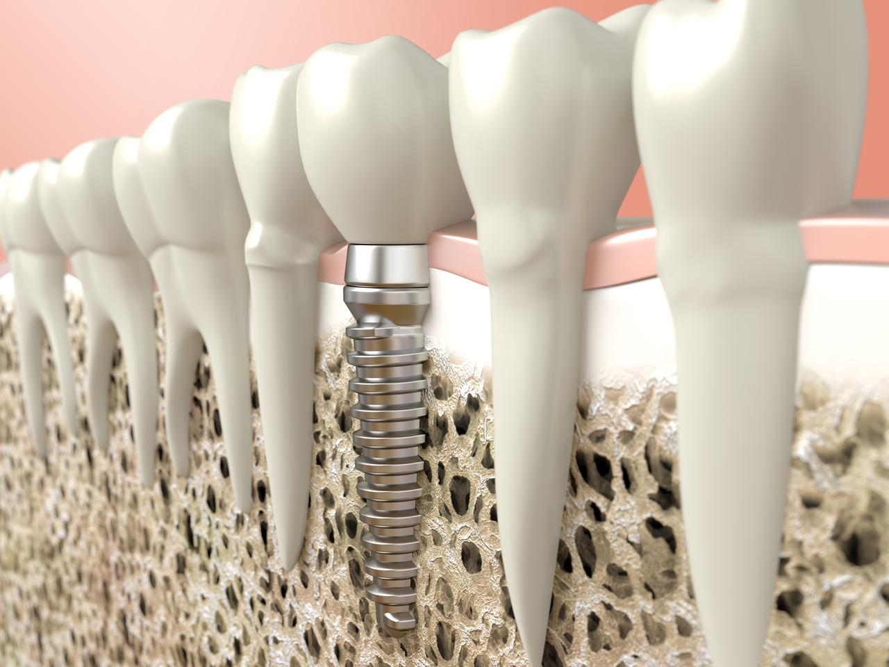 "The ""electrochemical therapy"" technology was used to kill Candida albicans, which are often the cause of infections around dental implants"
