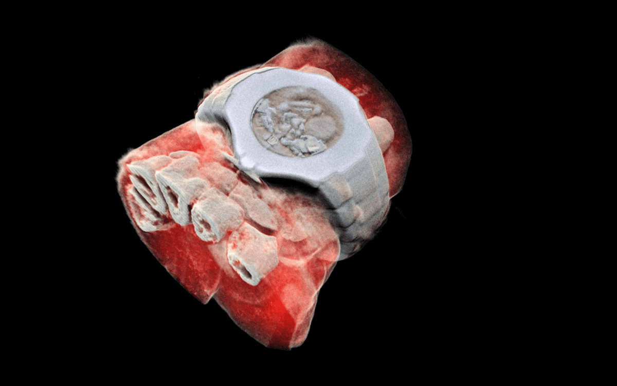 Using CERN technology,Mars Bioimaging has created the first 3D, color X-ray images of the human body