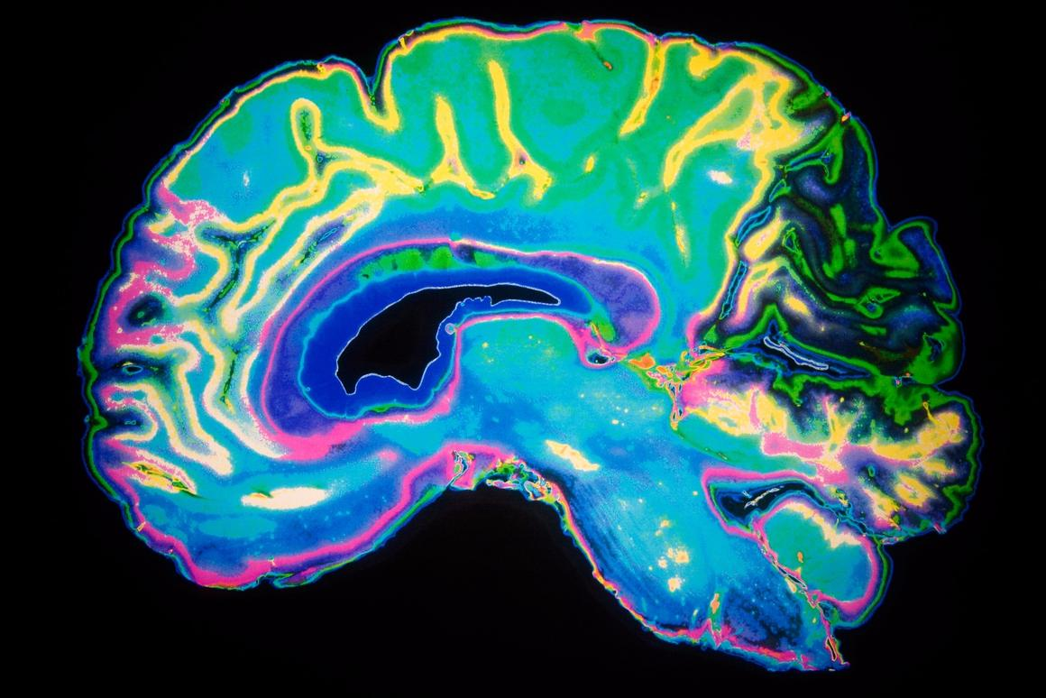 A new Harvard study offers another clue into the neurological foundation of psychopathic behavior