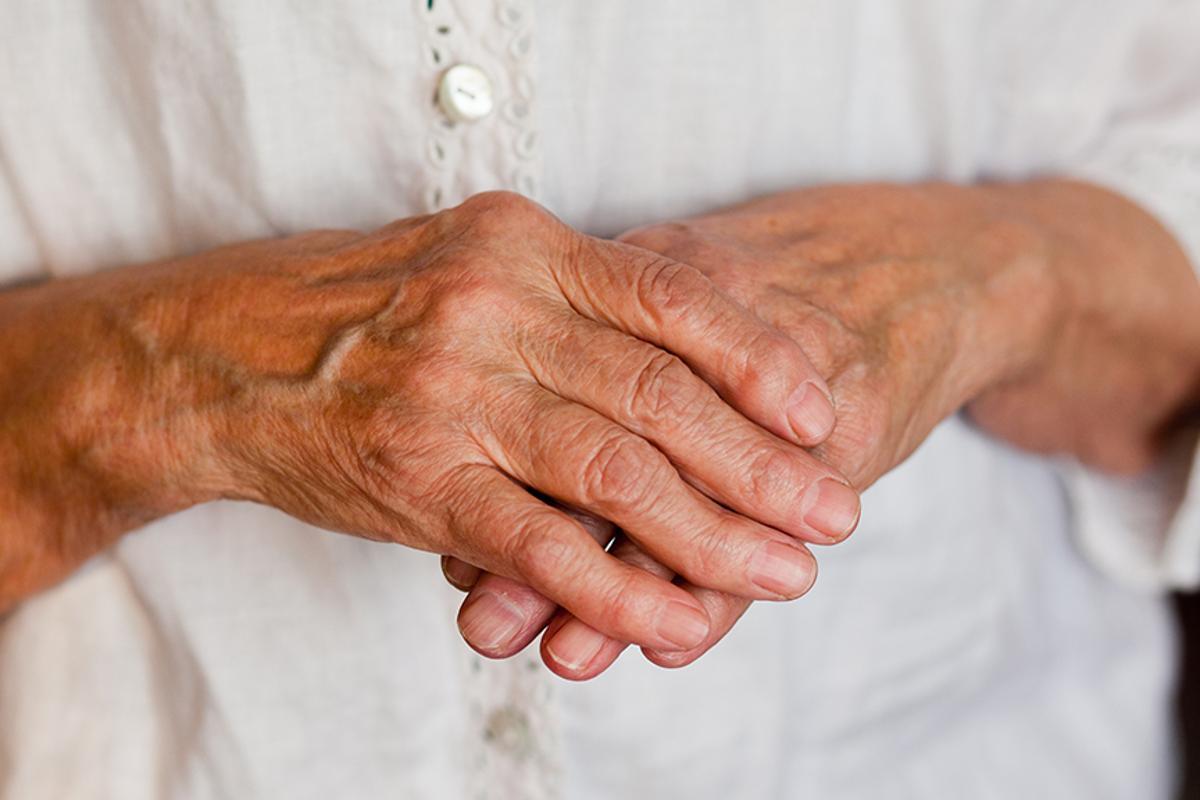 U.S. researchers are developing a new technique to treat autoimmune diseases like rheumatoid arthritis (Photo: Shutterstock)