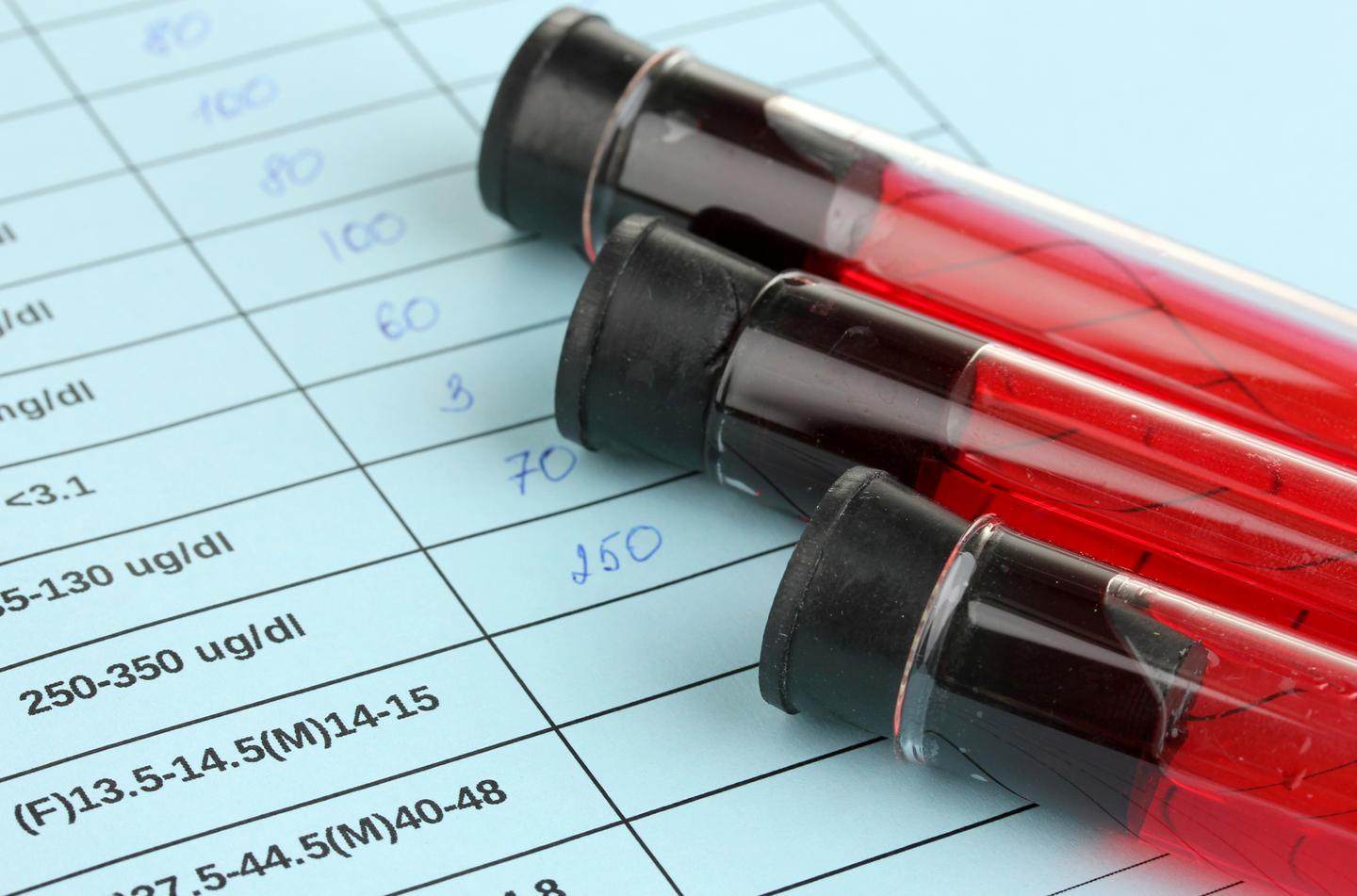 A blood test can detect DNA fragments from brain tumors circulating in a patient's bloodstream