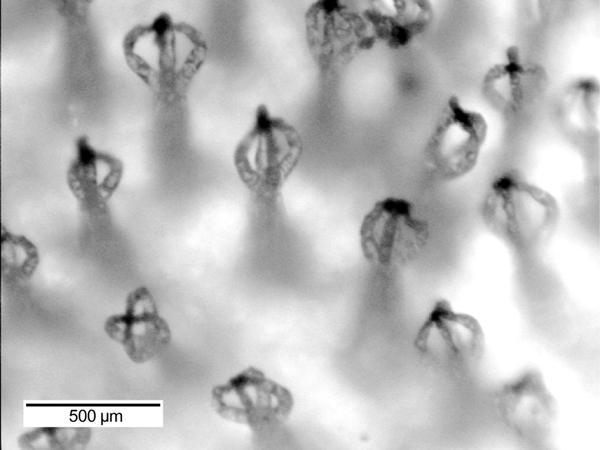 The eggbeater-like tips on the Salvinia hairs (Photo: OSU)