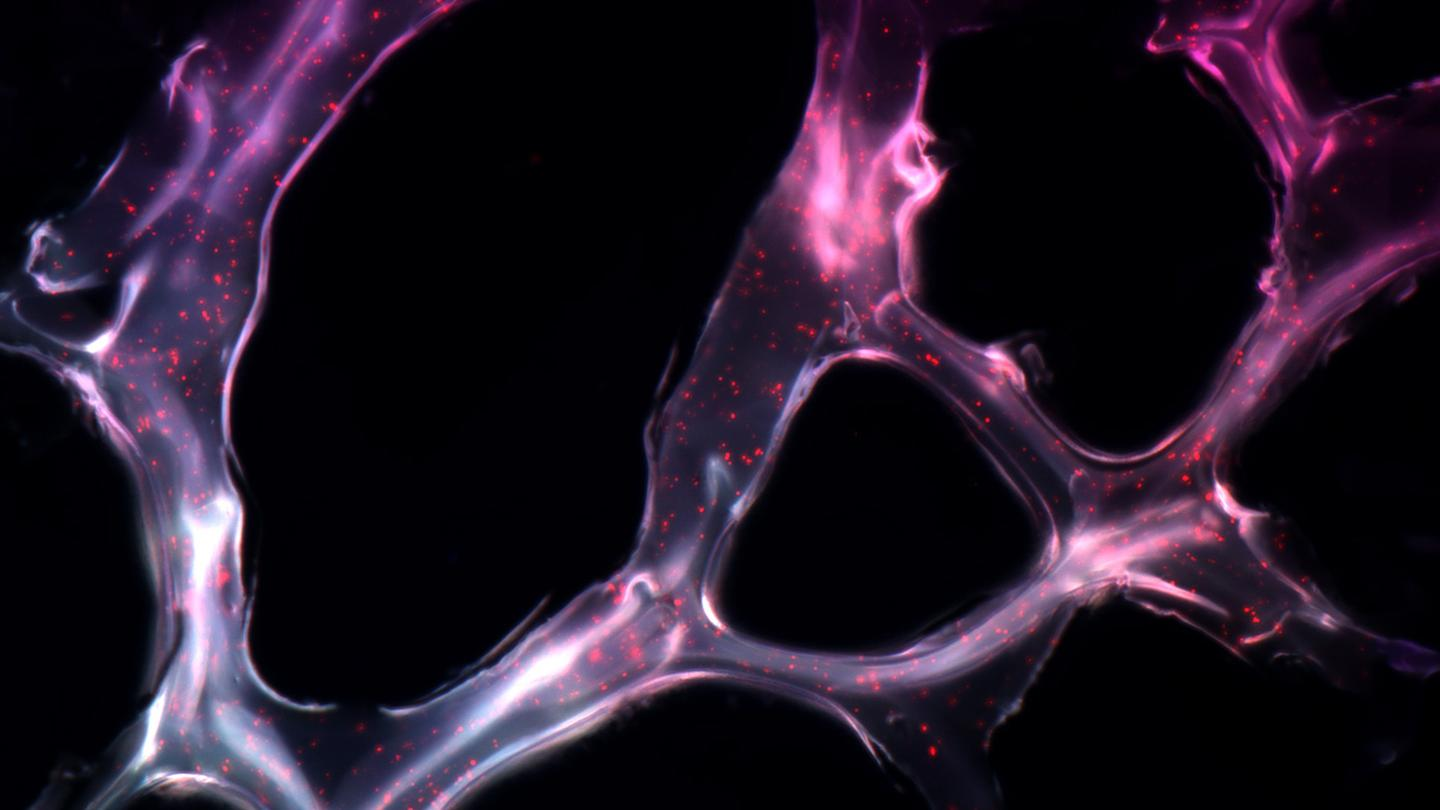 The researchers embedded triple helix microRNA particles into a gel and used it to successfully tackle tumors in mice