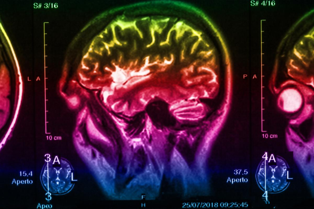 A newstudy suggests degradation in the brain's serotonin systems could precede visible symptoms of Parkinson's diseaseby up to 20 years
