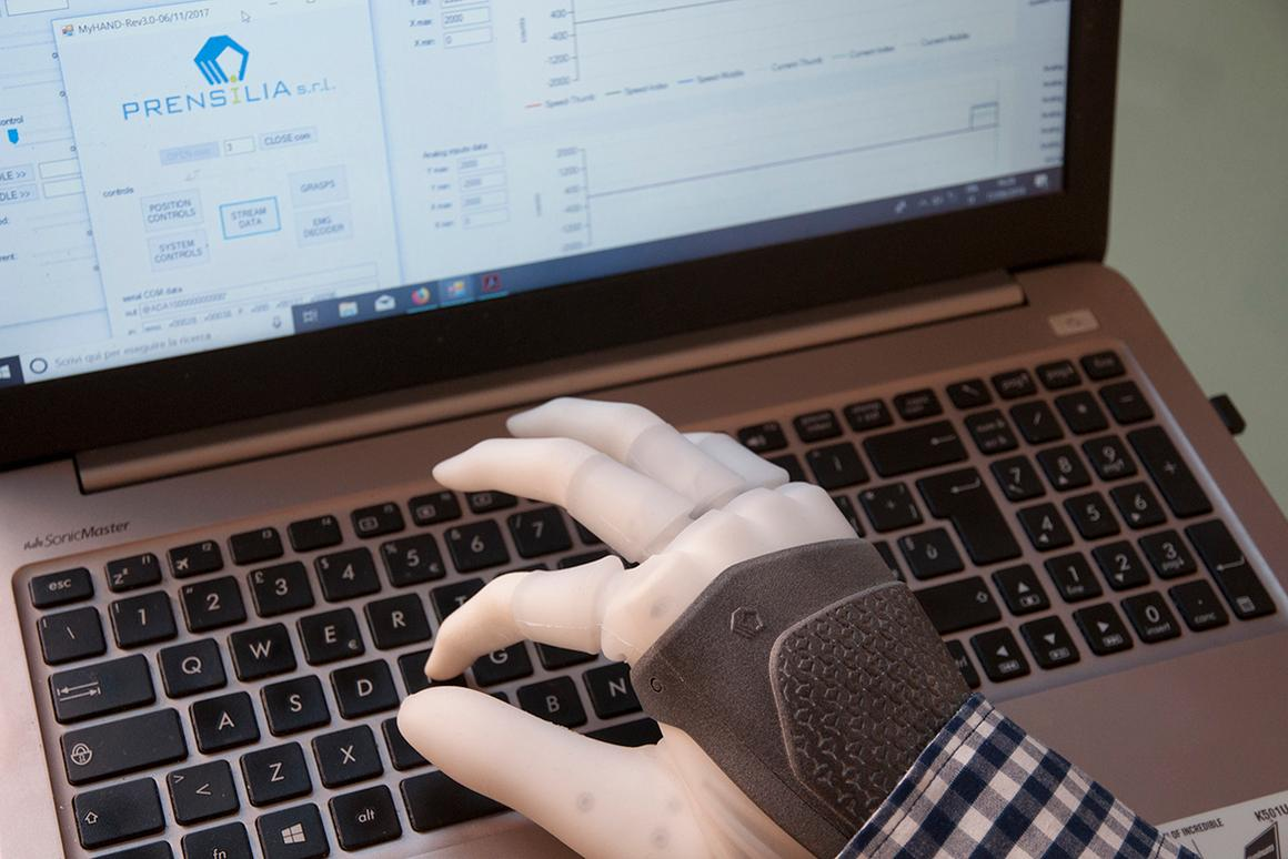 Theosseo-neuromuscular prosthesis not only results in improved dexterity, but also provides sensory feedback to the user