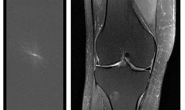 On the left is a single raw set of MRI data, and on the right is a fully reconstructed MRI image of a knee compiled from a number of sets of raw data