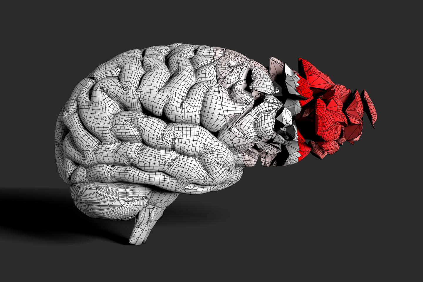 A new drug called SAK3 has shown promising preclinical results in animal models of Alzheimer's and Lewy Body dementia