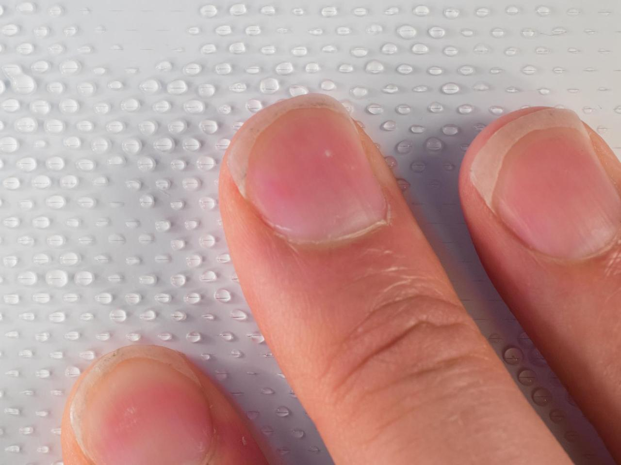 When someone pushes on a Surfaceskin pad, the pressure forces alcohol gel out of a reservoir within it, and through tiny holes on its surface