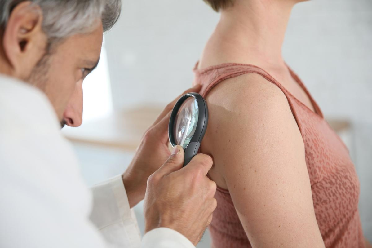 Researchers have identified a new target in thefight againstmelanoma