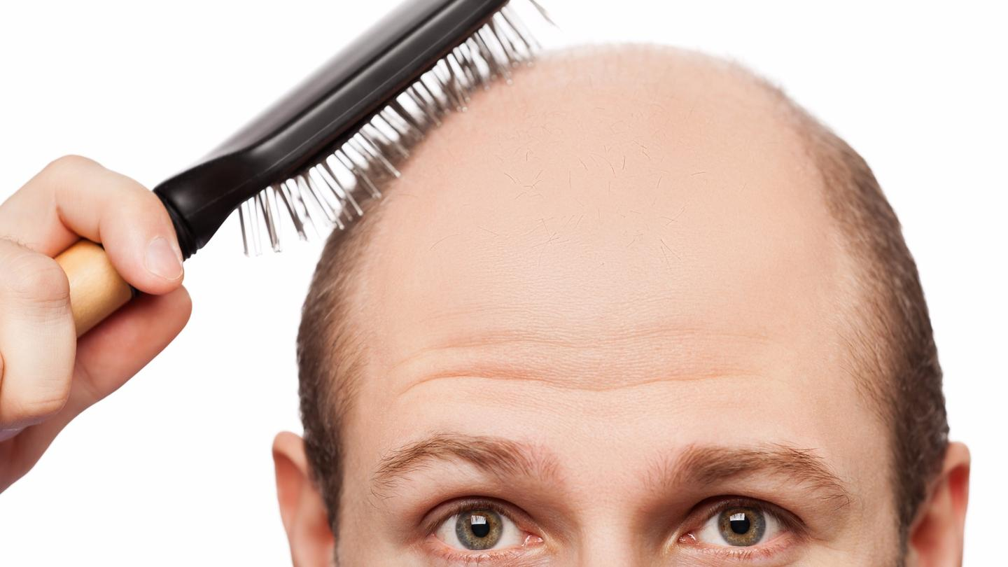 Researchers have discovered the cells responsible for hair growth, and the mechanism behind hair turning gray